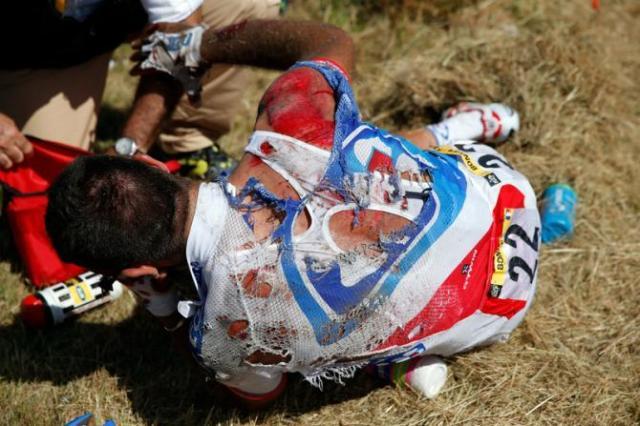 Bonnet (FDJ) abandona o tour devido aos ferimentos.